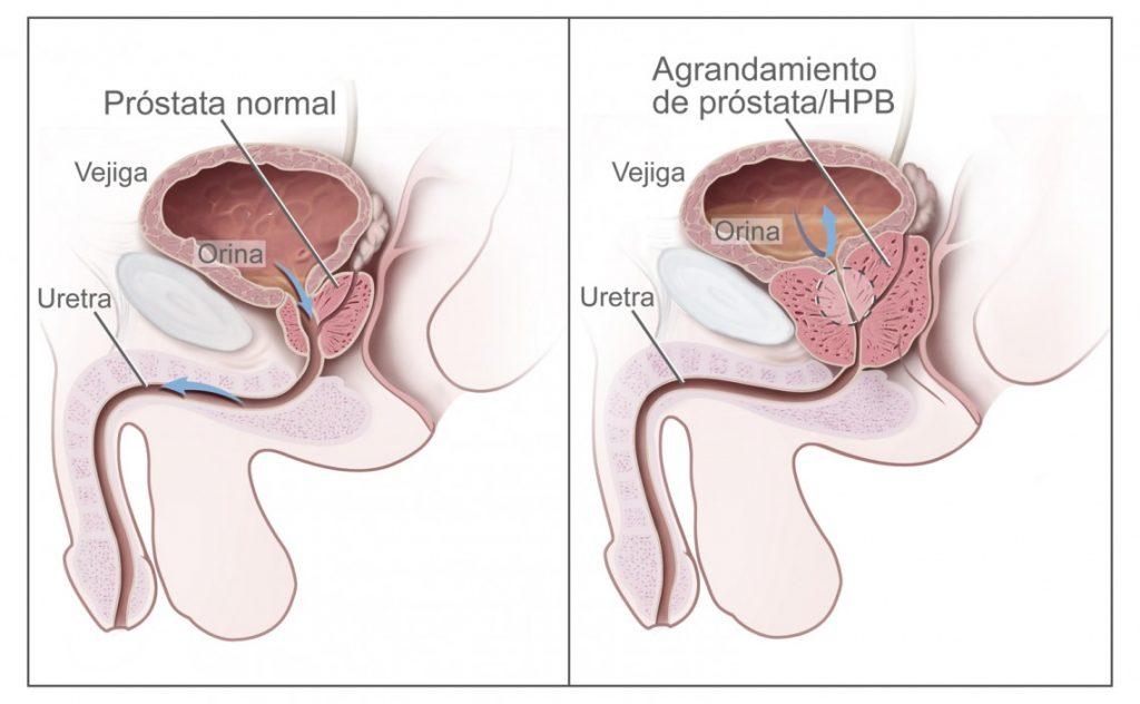 Se muestra la sintomatologia de la Hiperplasia Prostática Benigna