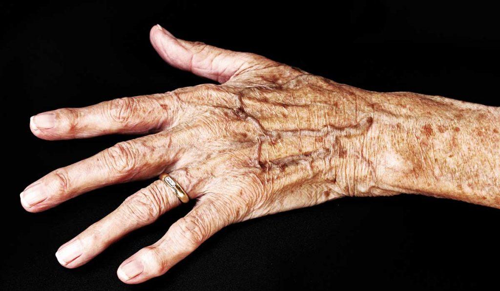 Se observa la piel de la mano de un adulto mayor
