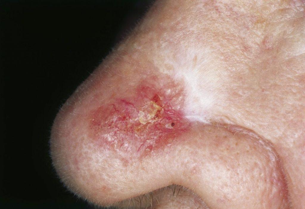 Se muestra una zona una nariz con carcinoma basoceluar