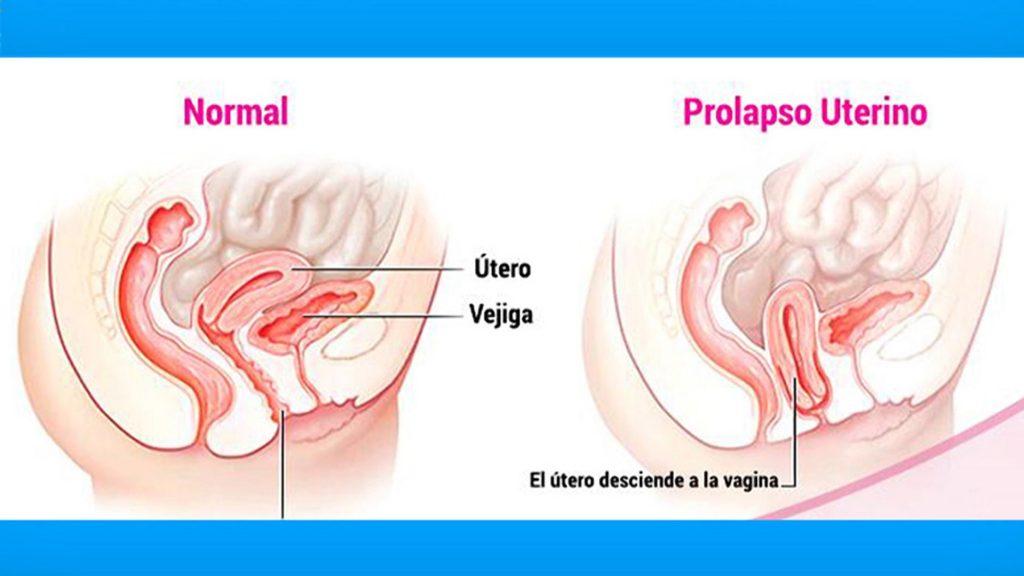Se muestra el estadio normal y un prolapso uterino en una mujer adulta mayor